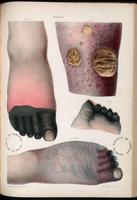 Gangrene of the toes and foot, gangrene caused by heart disease