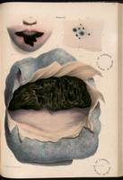 Gangrene of the lower lip, skin damaged by leeches, gangrene of the lung