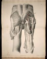 Dissection of the buttocks, gluteal arteries