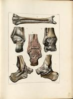 Ankle joint, bones and ligaments of the lower leg and foot