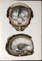 Base of skull with dura mater