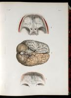 Skull base and brain