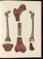 Femur; bone and bone tissue