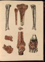 Tibia, fibula and foot bones; bone and bone tissue, arteries and veins