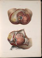 Dissection of the abdomen, in cross-section