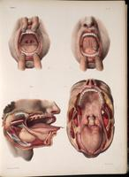 Dissection of the mouth
