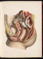 Dissection of the pelvis, female urogenital system