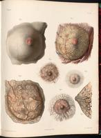 Dissection of the breast