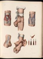 Dissection of the cubital fossa, sites for bloodletting, lancets