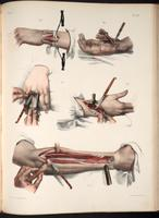 Resection of bone; surgery to remove radius, metacarpal bone and phalange