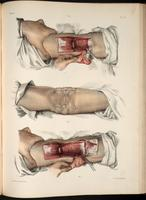 Resection of the elbow joint