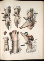 Resection of the ankle and wrist joints