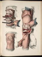 Resection of the knee joint
