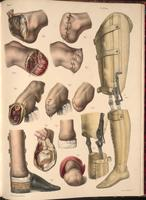 Amputation of the foot and leg, examples of prostheses