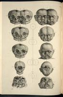 Head and skull of malformed infants; conjoined twins, bilateral cleft lip and holoprosencephaly