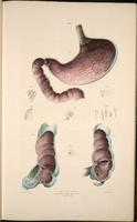 Stomach, duodenum, cecum and appendix