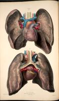 Heart, lungs, pulmonary and coronary vessels and bronchi