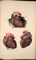 Heart, pericardium, aorta and vena cava