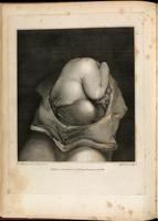 Ruptured uterus, with fetus