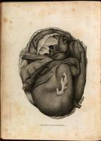 Lithopedion (calcified fetus)