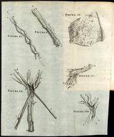 Umbilical cord, umbilical arteries and veins and section of placenta