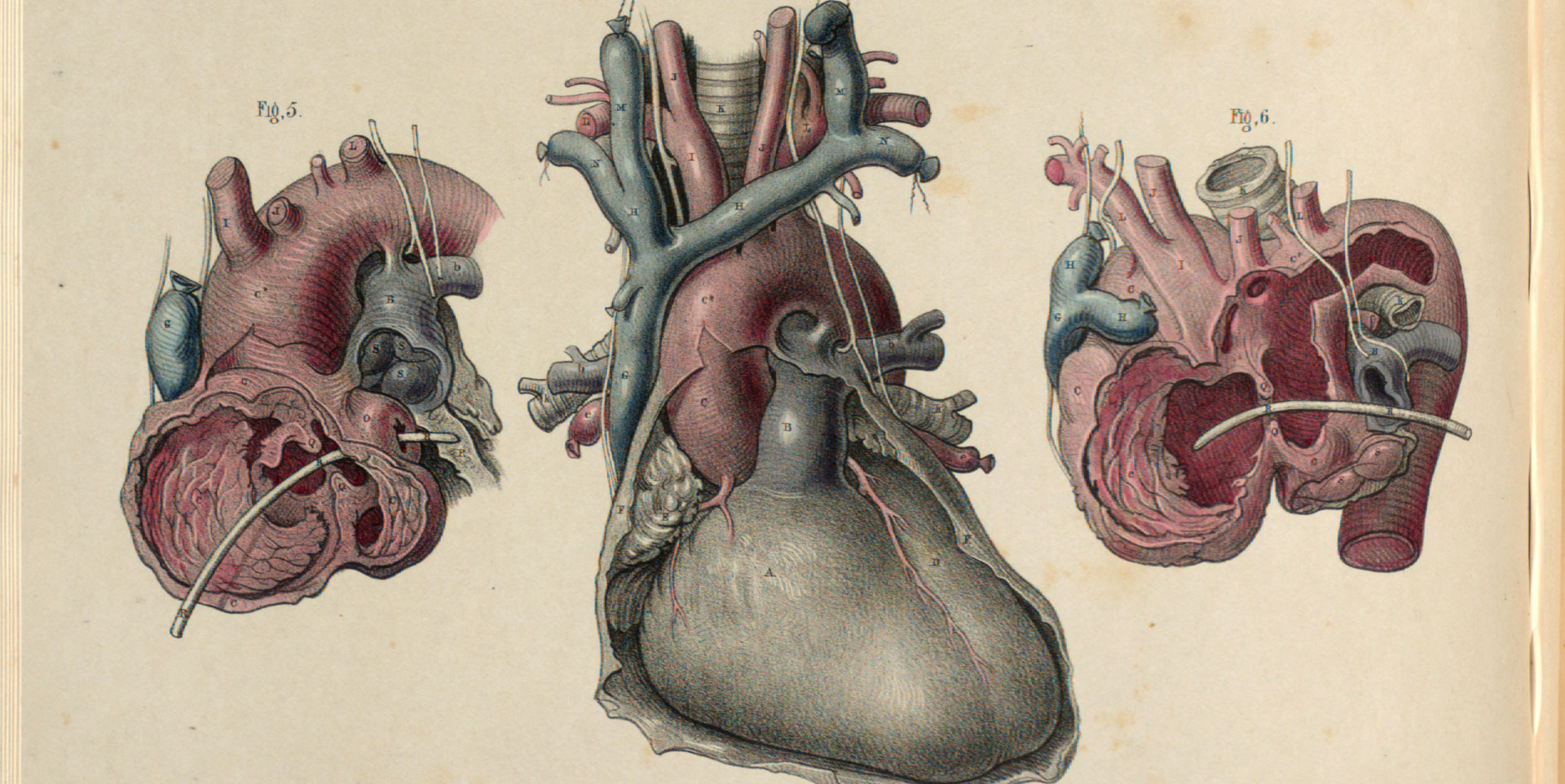 Heart and aortic aneurysms.