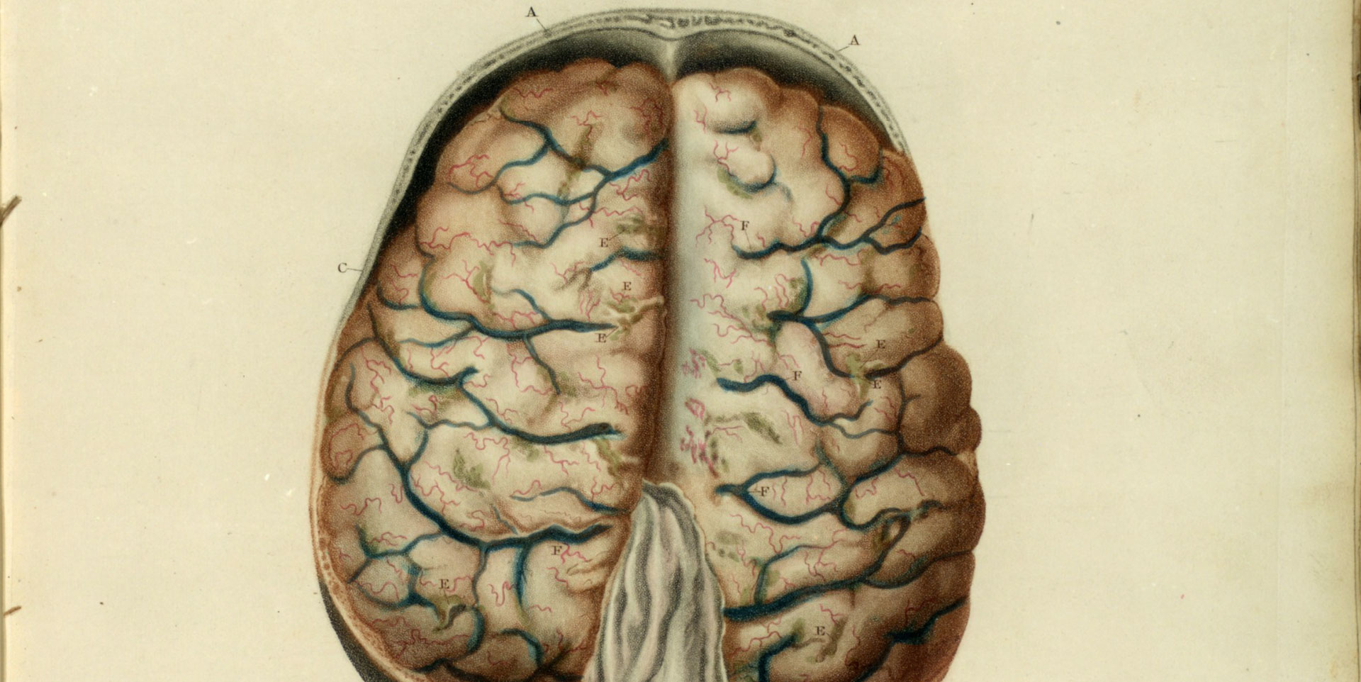 Inflammation of the pia mater.